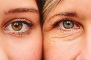 Opadające powieki – przyczyny, makijaż, zabiegi